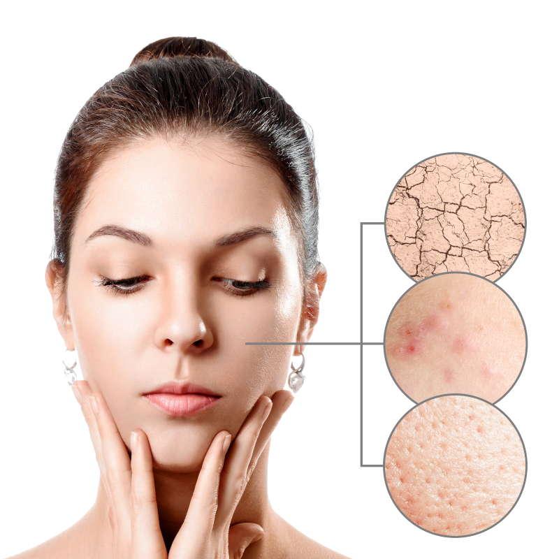 Starten Sie jetzt Ihre kostenfreie Hautbildanalyse online